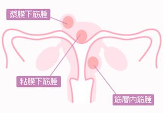 婦人科子宮筋腫