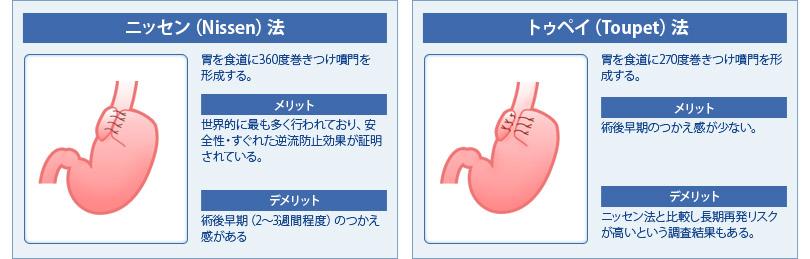 逆食手術術式