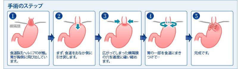 逆食手術の流れ