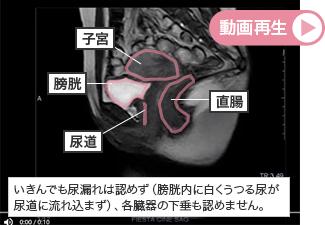 【シネMRI正常の動画】