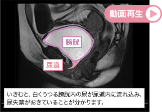 【シネMRI腹圧性尿失禁の動画】