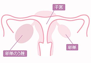 もの おり 卵巣 嚢腫